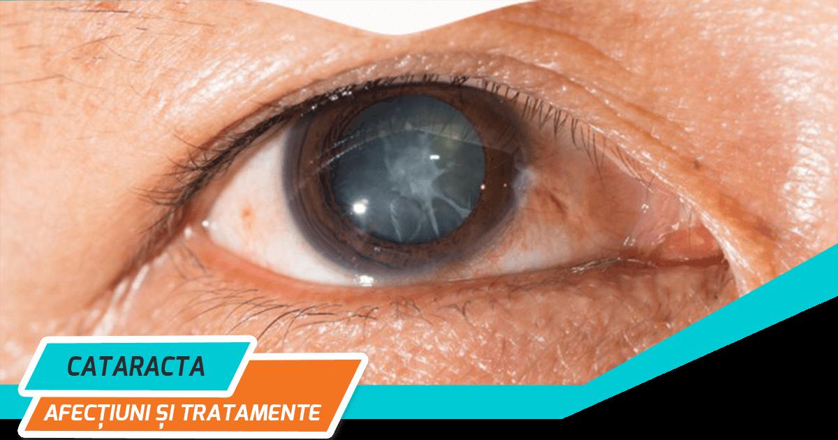 Recuperarea după operația de cataractă: ce să faci și ce să nu faci