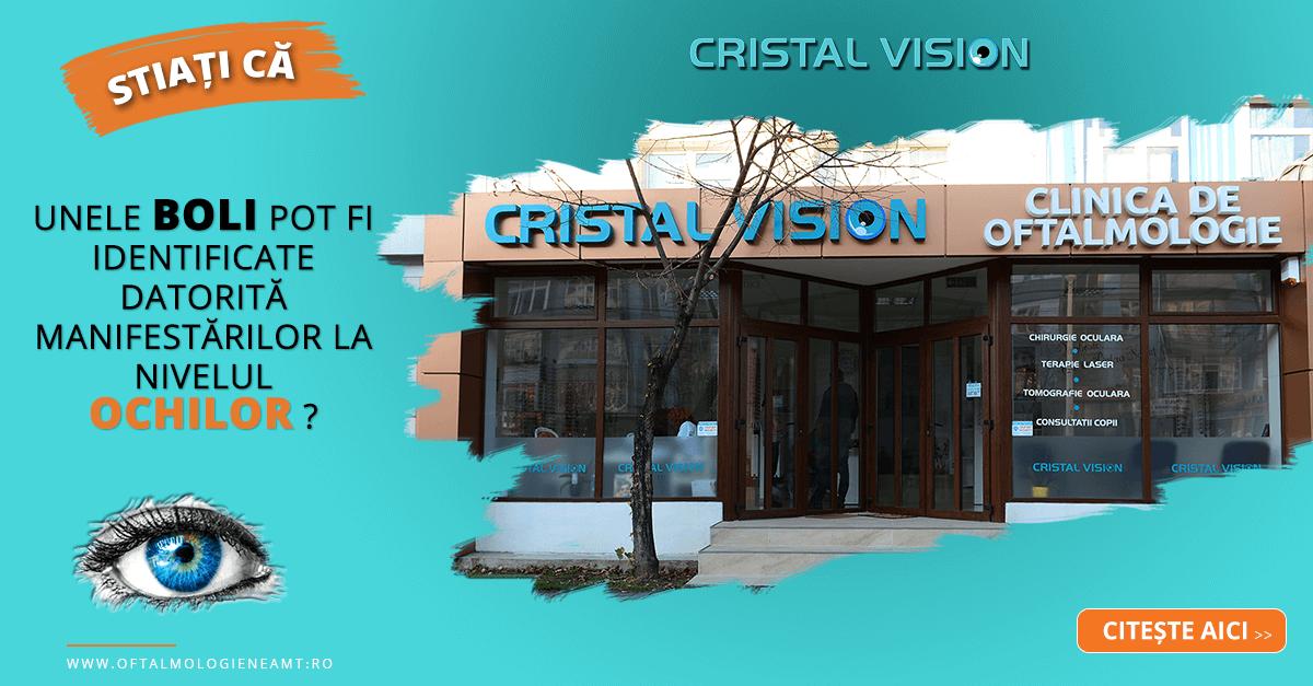 cristal-vision-clinica-de-oftalmologie-piatra-neamt-1200x627.png