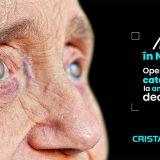 Operatie de cataracta ambii ochi - cristal vision(1)