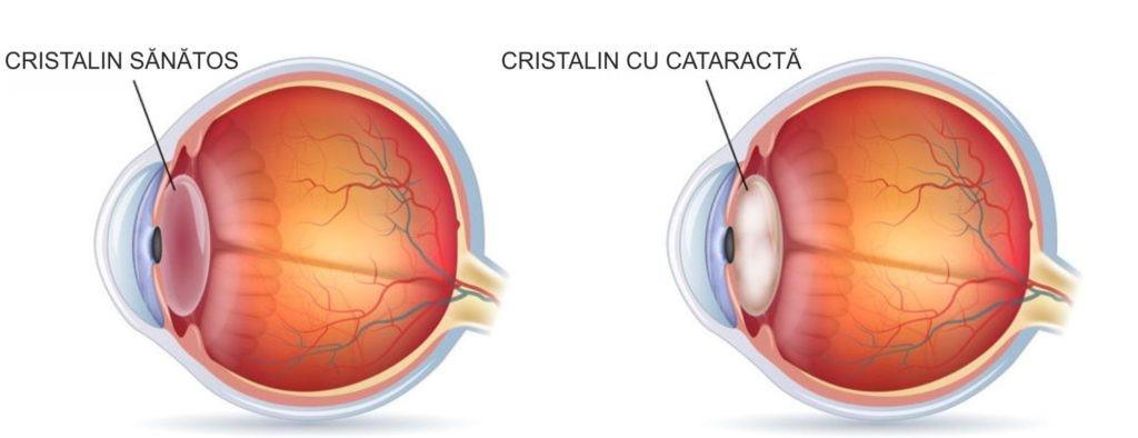 cristalin sanatos - cristalin cu cataracta
